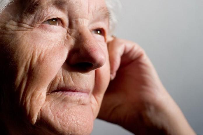 Alzheimer, trastorno que puede diagnosticarse en las primeras etapas.