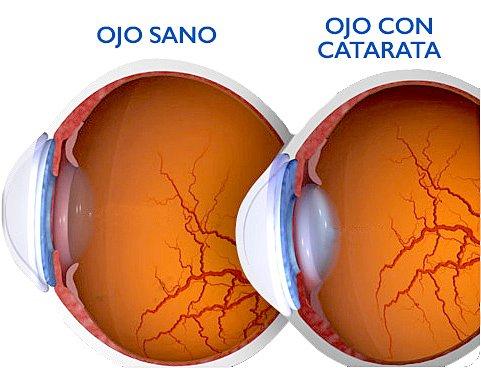 Las células madre han permitido la regeneración del tejido ocular en niños con cataratas.
