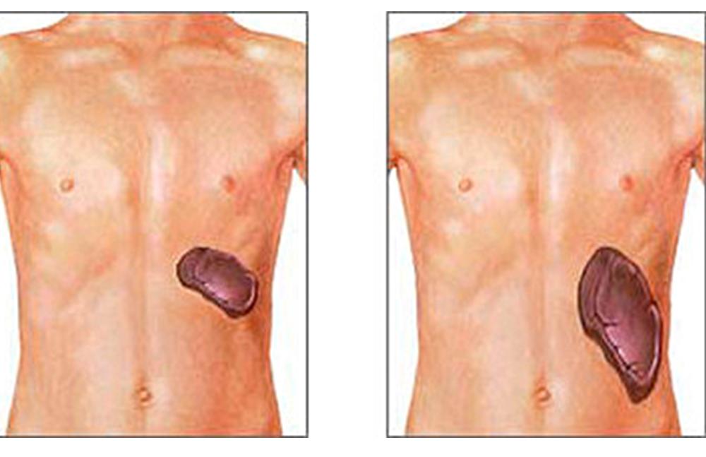 Señalan síntomas de la esplenomegalia o agrandamiento del bazo | El ...
